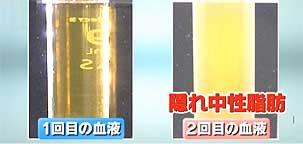 kakurecyuseishibo5421-1