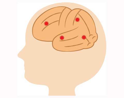 脳内物質NGF